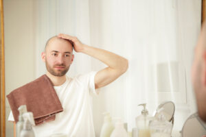 Benefits of having hair transplantation