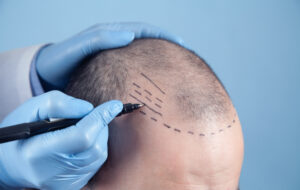 How to Restore Your Hair Using Hair Transplantation: Procedure, Costs, Results – Medart Hair Clinic